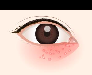 目の周りの感染症